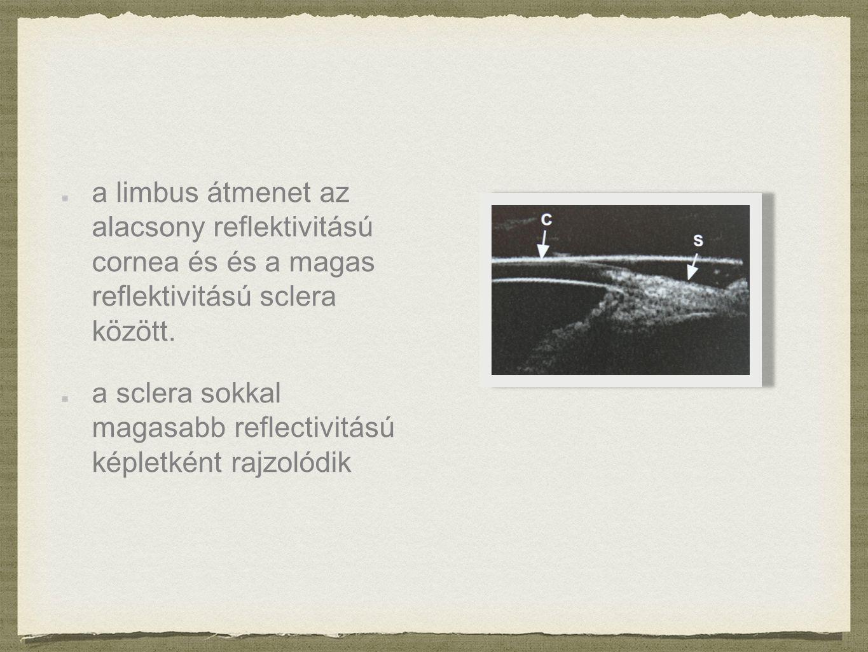 a limbus átmenet az alacsony reflektivitású cornea és és a magas reflektivitású sclera között.