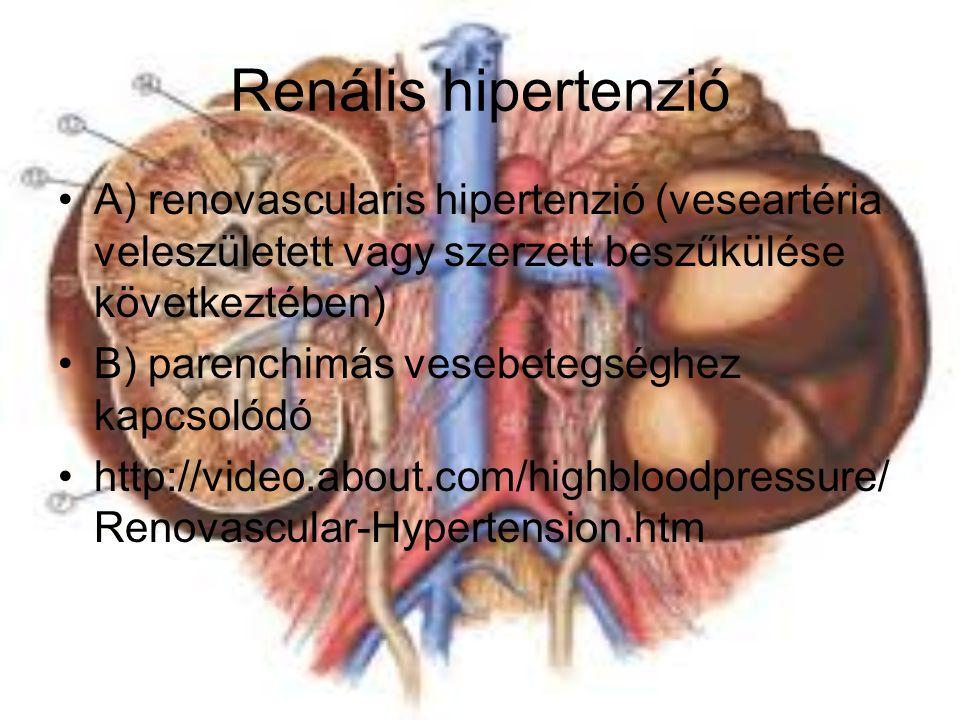 Renális hipertenzió A) renovascularis hipertenzió (veseartéria veleszületett vagy szerzett beszűkülése következtében)