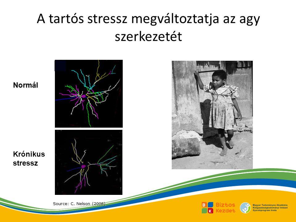 A tartós stressz megváltoztatja az agy szerkezetét