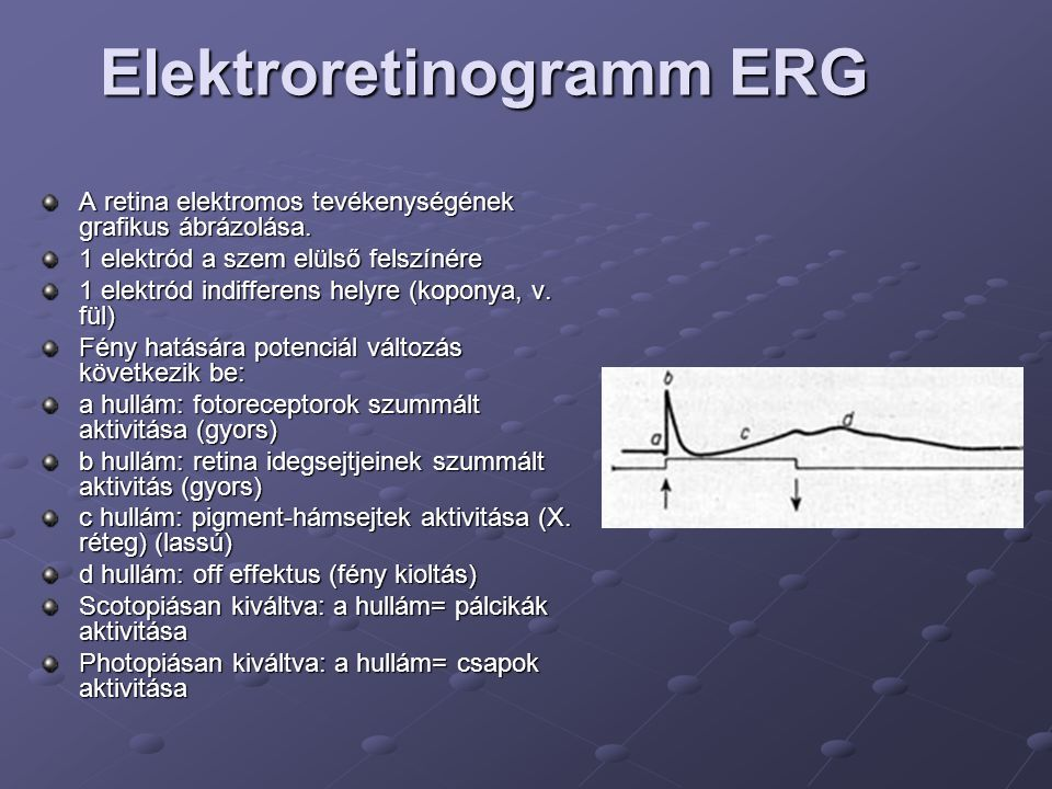 Elektroretinogramm ERG