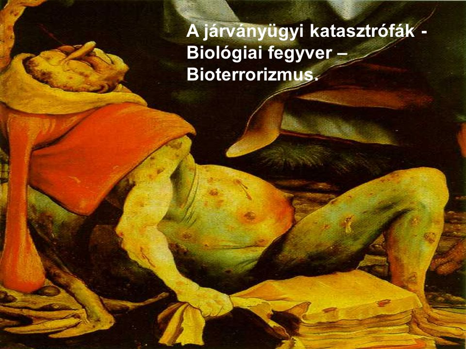 A járványügyi katasztrófák - Biológiai fegyver – Bioterrorizmus.
