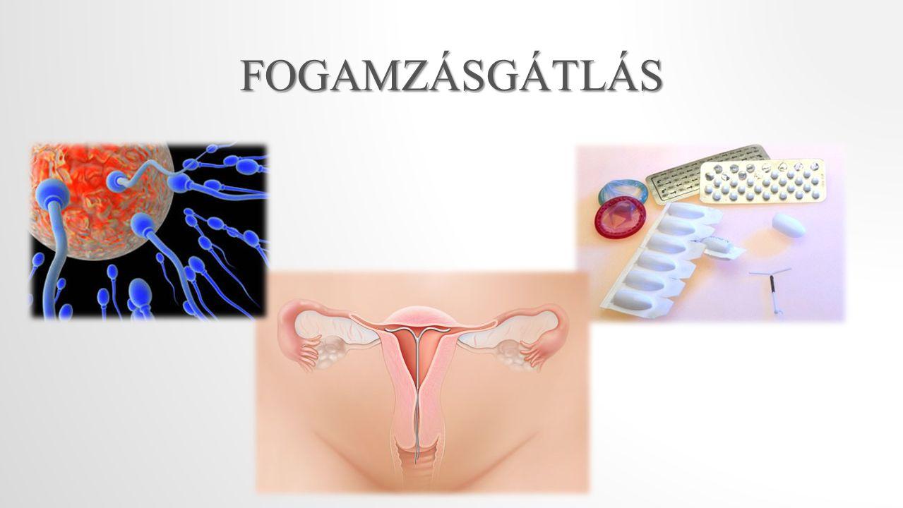 FOGAMZÁSGÁTLÁS