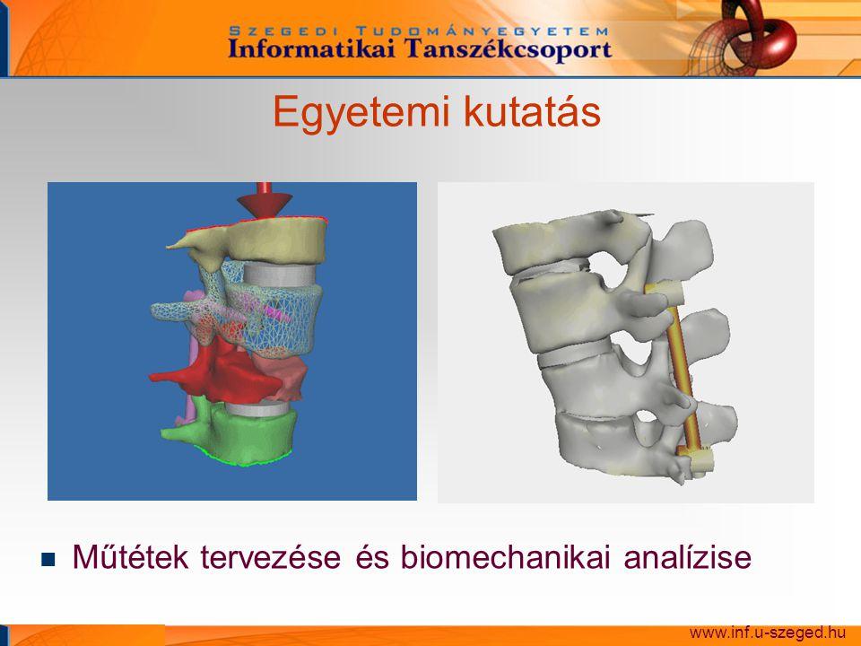 Egyetemi kutatás Műtétek tervezése és biomechanikai analízise