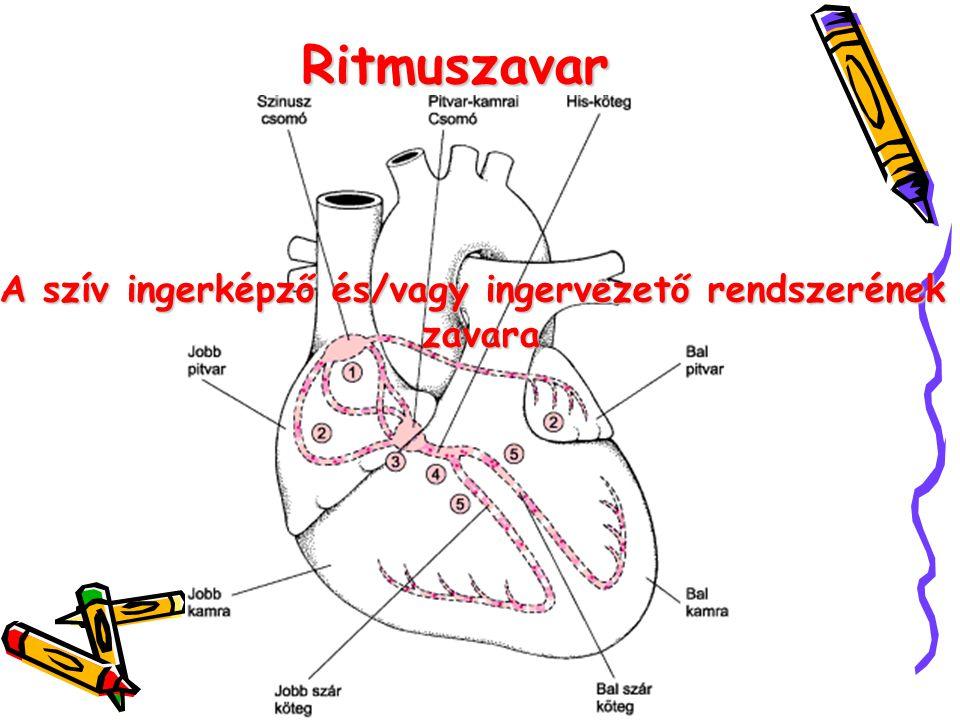 A szív ingerképző és/vagy ingervezető rendszerének
