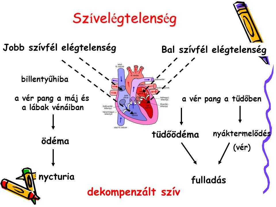 Szívelégtelenség dekompenzált szív Jobb szívfél elégtelenség