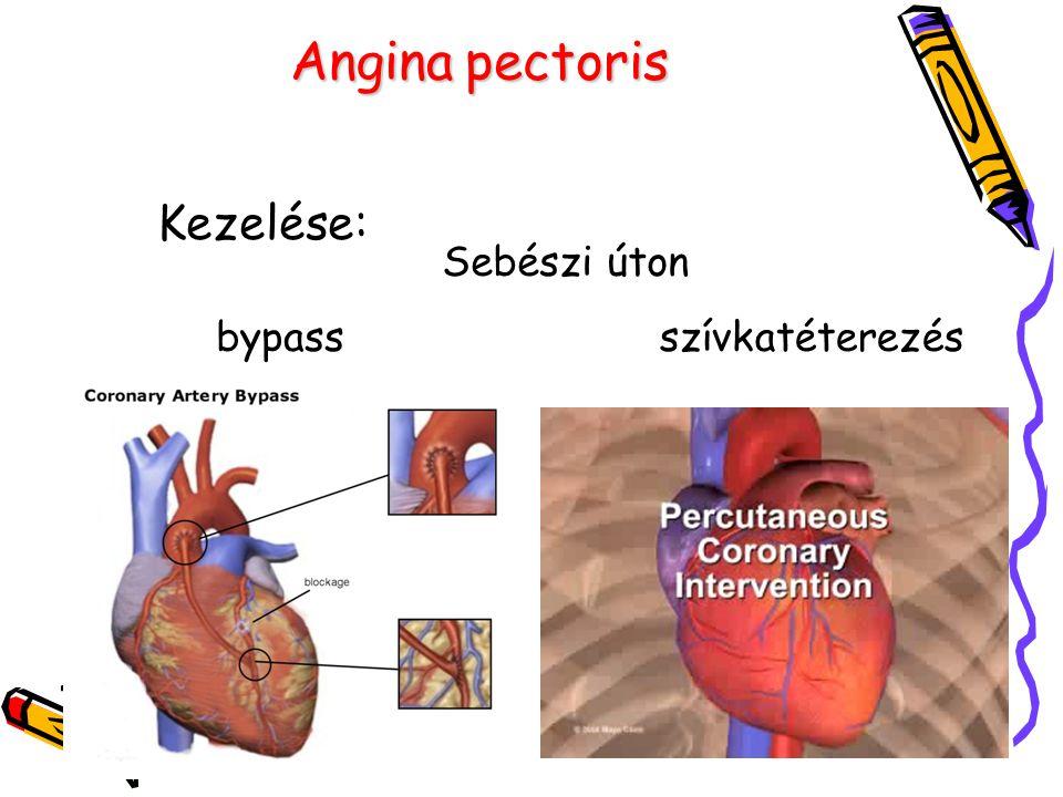 Angina pectoris Kezelése: Sebészi úton bypass szívkatéterezés