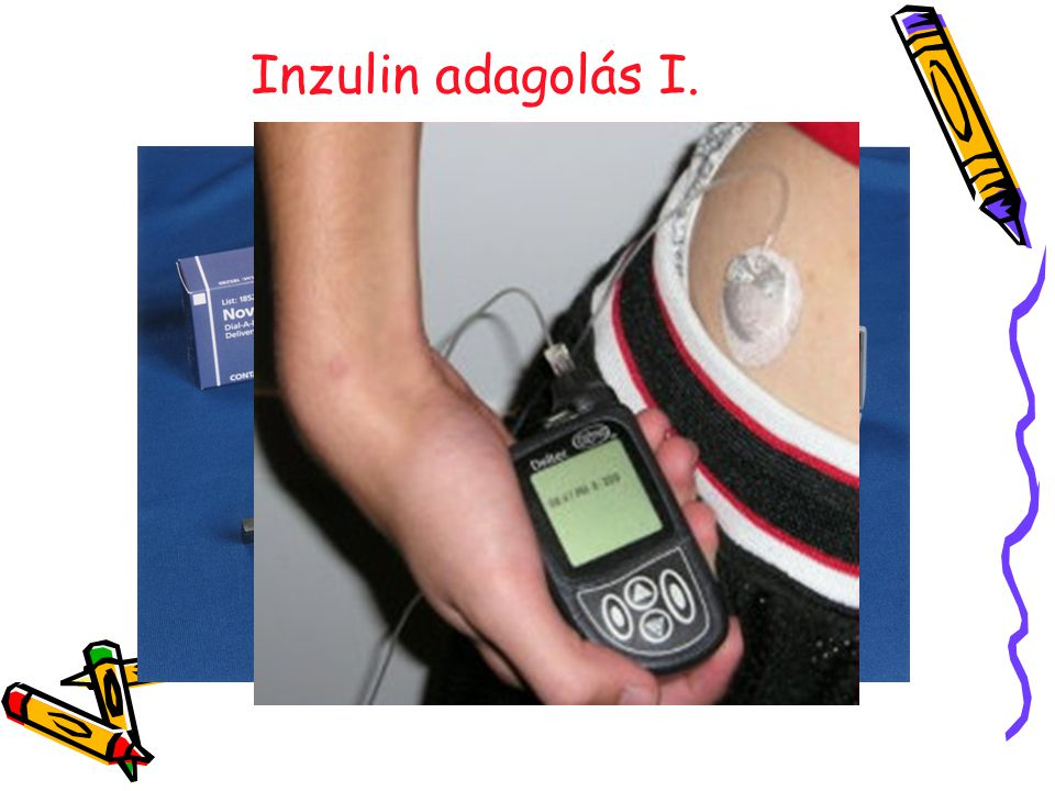 Inzulin adagolás I. 18