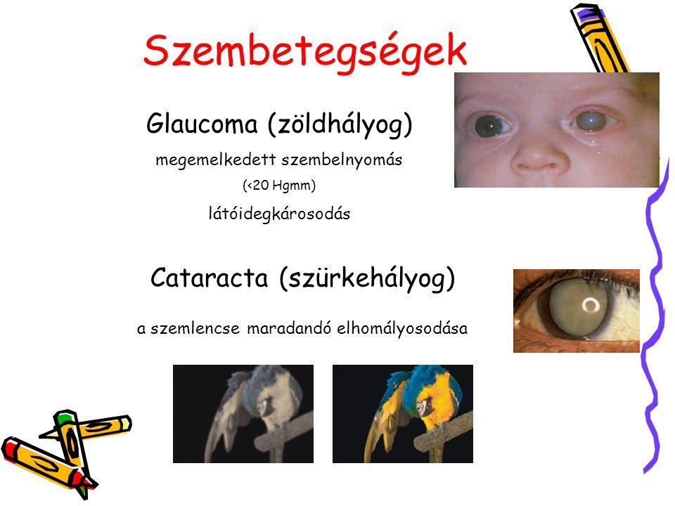 Szembetegségek Glaucoma (zöldhályog) Cataracta (szürkehályog)