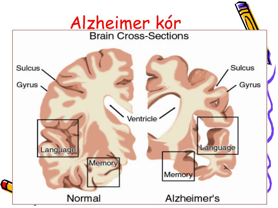 Alzheimer kór