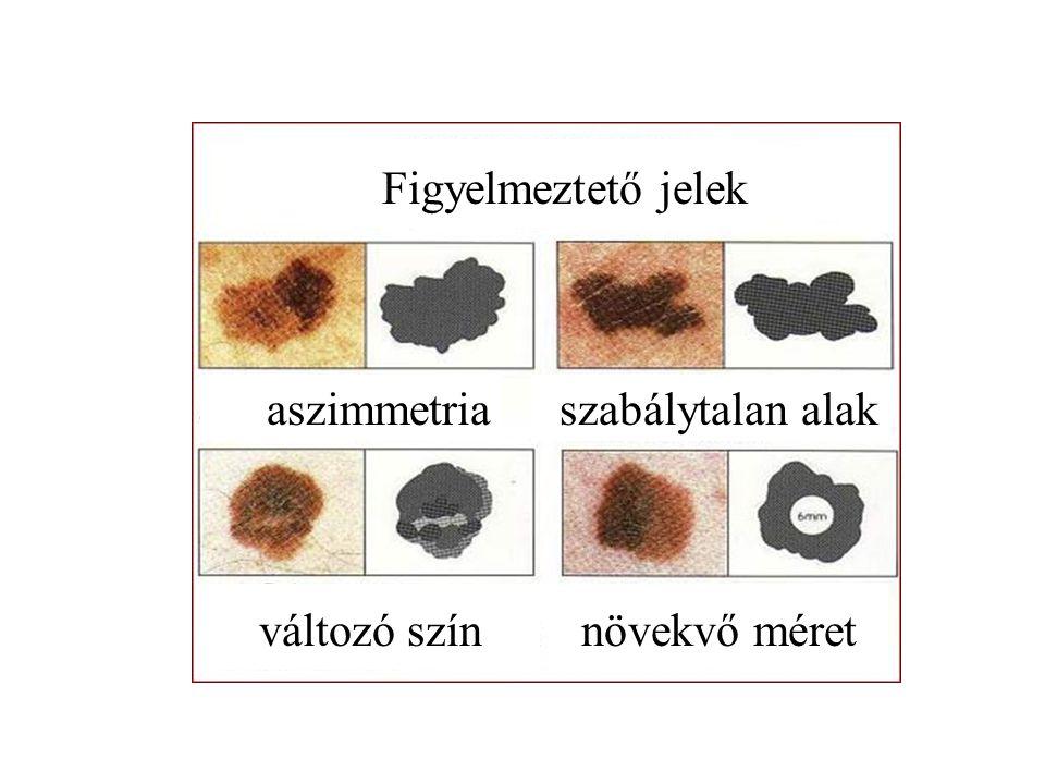 Figyelmeztető jelek aszimmetria szabálytalan alak változó szín növekvő méret