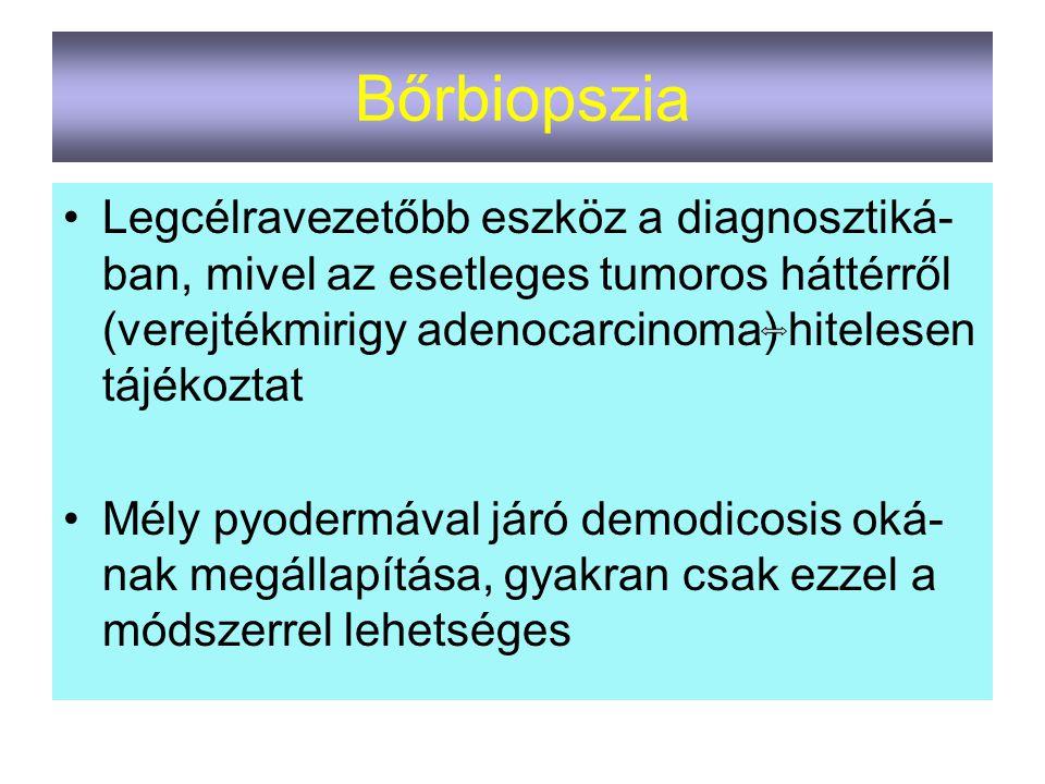 Bőrbiopszia Legcélravezetőbb eszköz a diagnosztiká-ban, mivel az esetleges tumoros háttérről (verejtékmirigy adenocarcinoma) hitelesen tájékoztat.