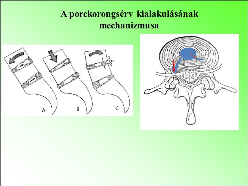 A porckorongsérv kialakulásának mechanizmusa