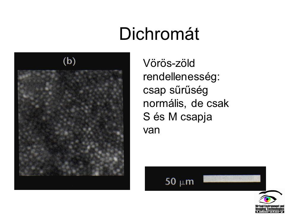 Dichromát Vörös-zöld rendellenesség: csap sűrűség normális, de csak S és M csapja van.