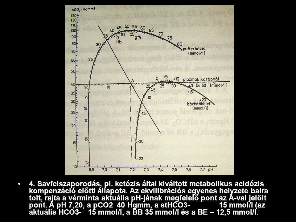 4. Savfelszaporodás, pl. ketózis által kiváltott metabolikus acidózis kompenzáció előtti állapota.