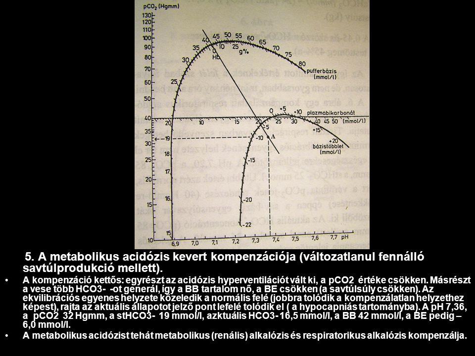 5. A metabolikus acidózis kevert kompenzációja (változatlanul fennálló savtúlprodukció mellett).