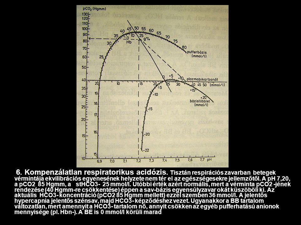 6. Kompenzálatlan respiratorikus acidózis