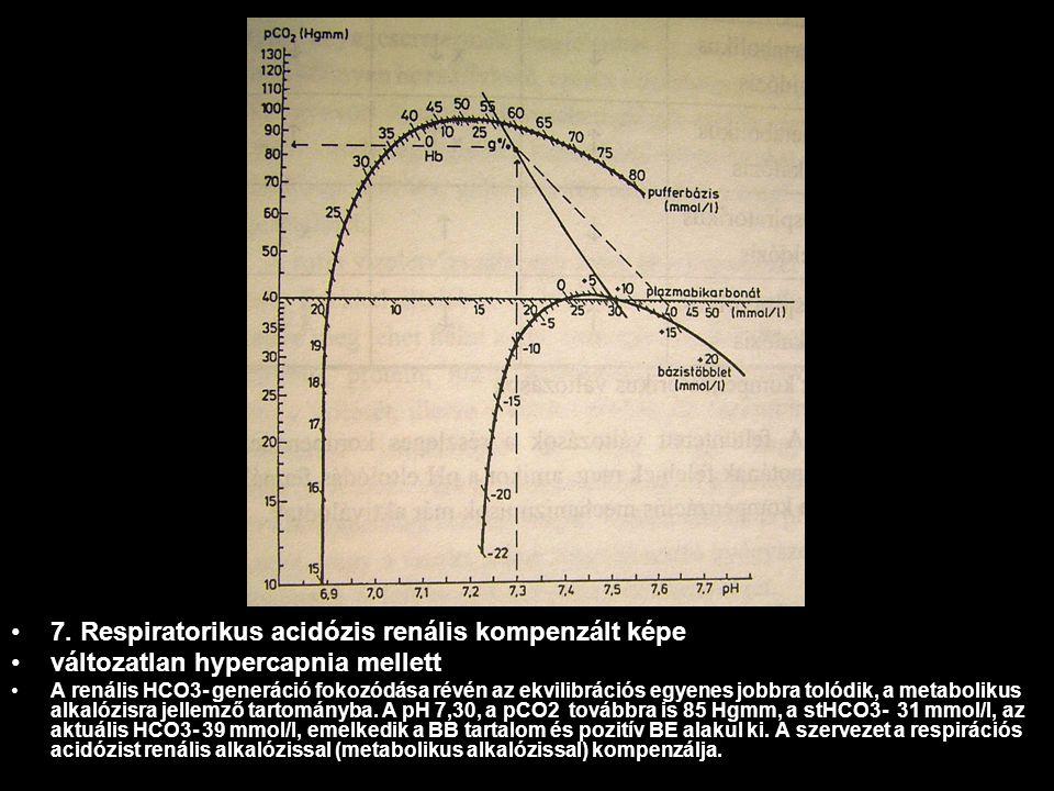 7. Respiratorikus acidózis renális kompenzált képe