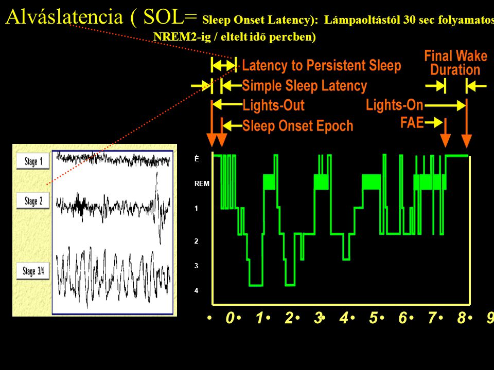 Latency to Persistent Sleep