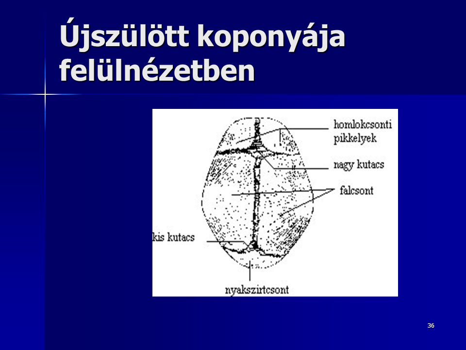 Újszülött koponyája felülnézetben