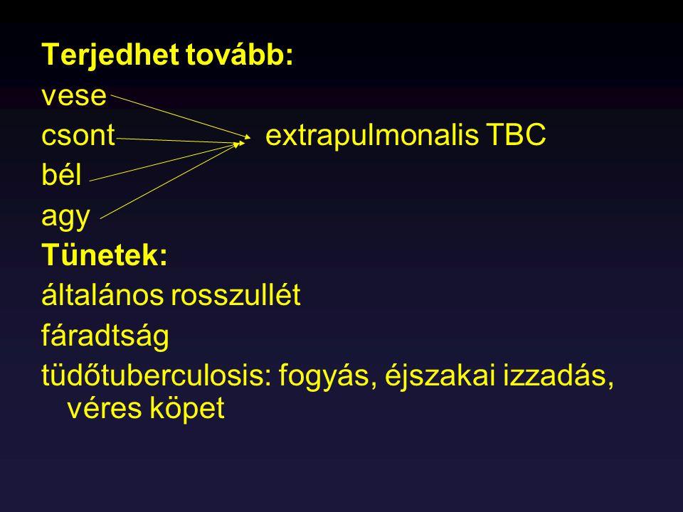 Terjedhet tovább: vese. csont extrapulmonalis TBC. bél. agy. Tünetek: általános rosszullét.