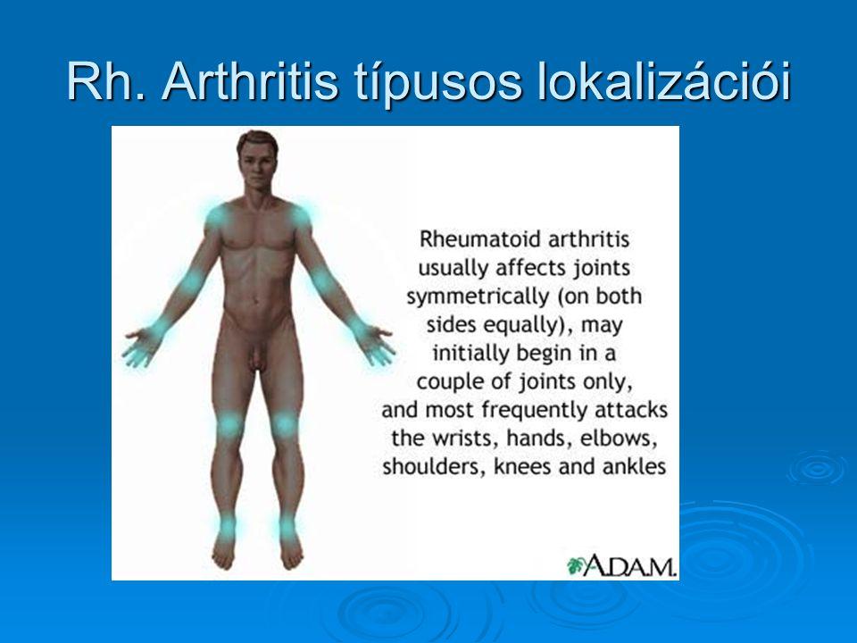 Rh. Arthritis típusos lokalizációi
