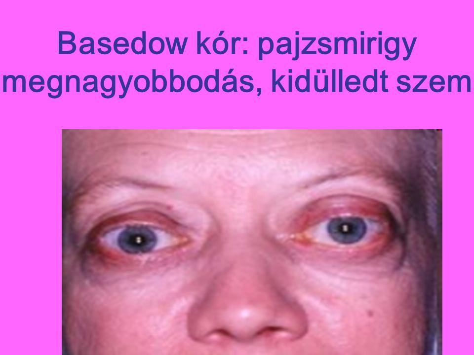 Basedow kór: pajzsmirigy megnagyobbodás, kidülledt szem
