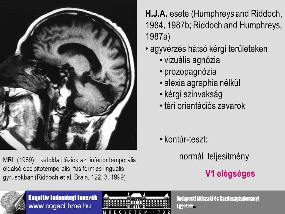 agyvérzés hátsó kérgi területeken vizuális agnózia prozopagnózia
