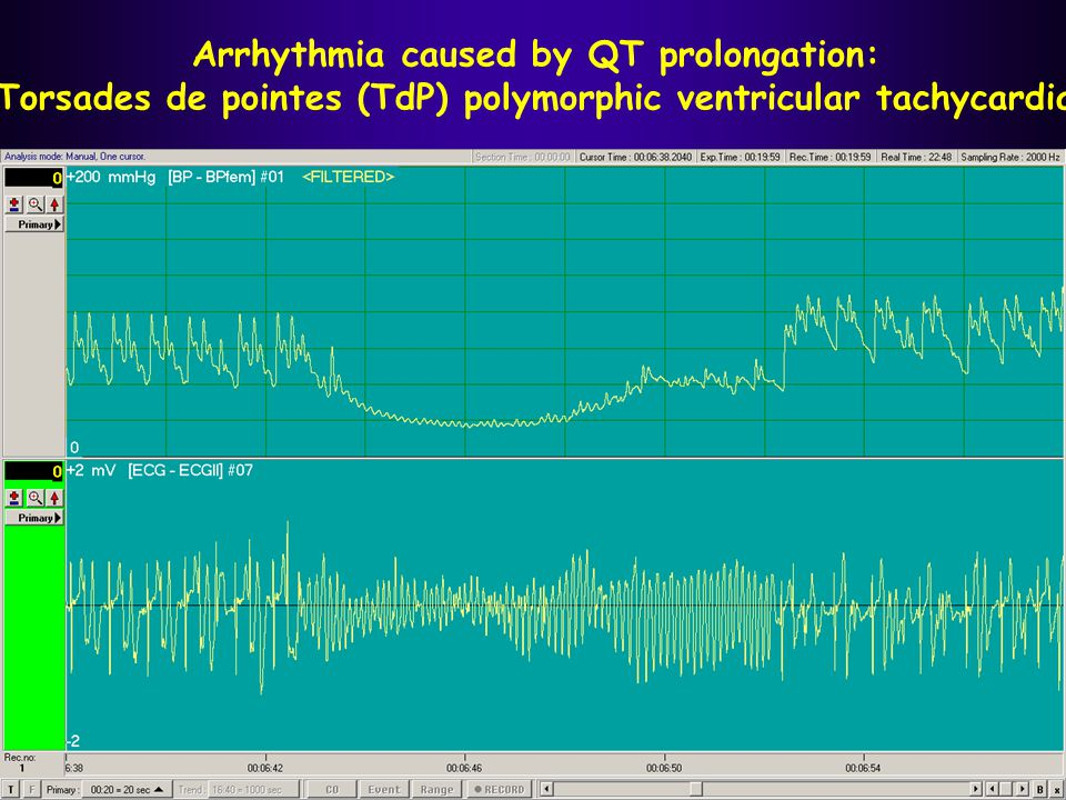 Arrhythmia caused by QT prolongation: