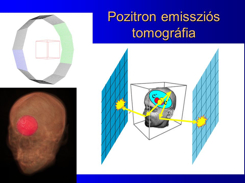 Pozitron emissziós tomográfia