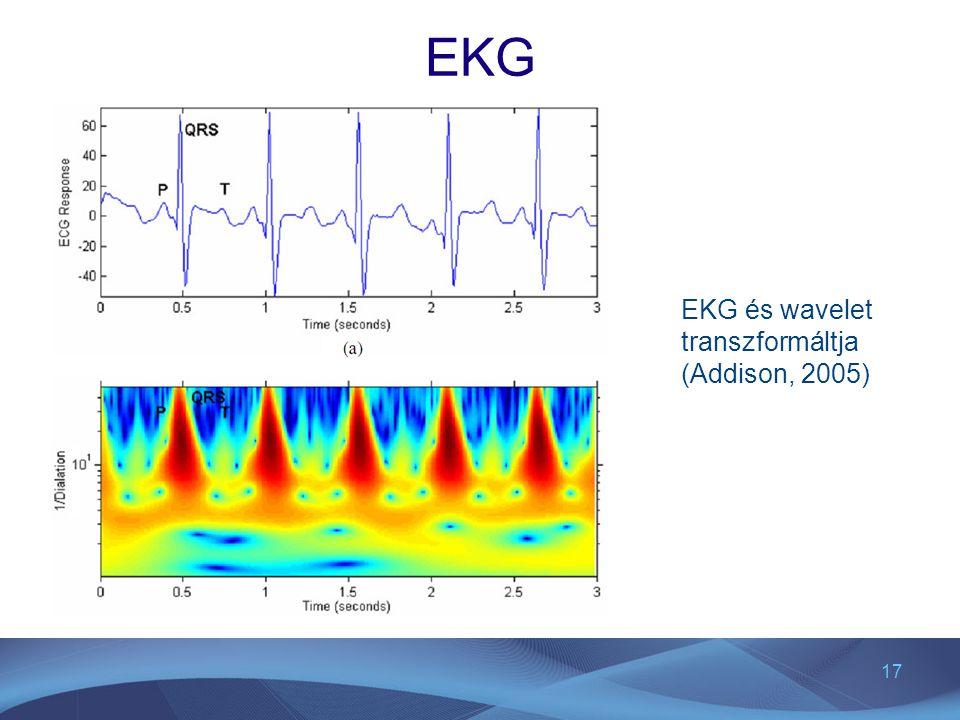 EKG EKG és wavelet transzformáltja (Addison, 2005)