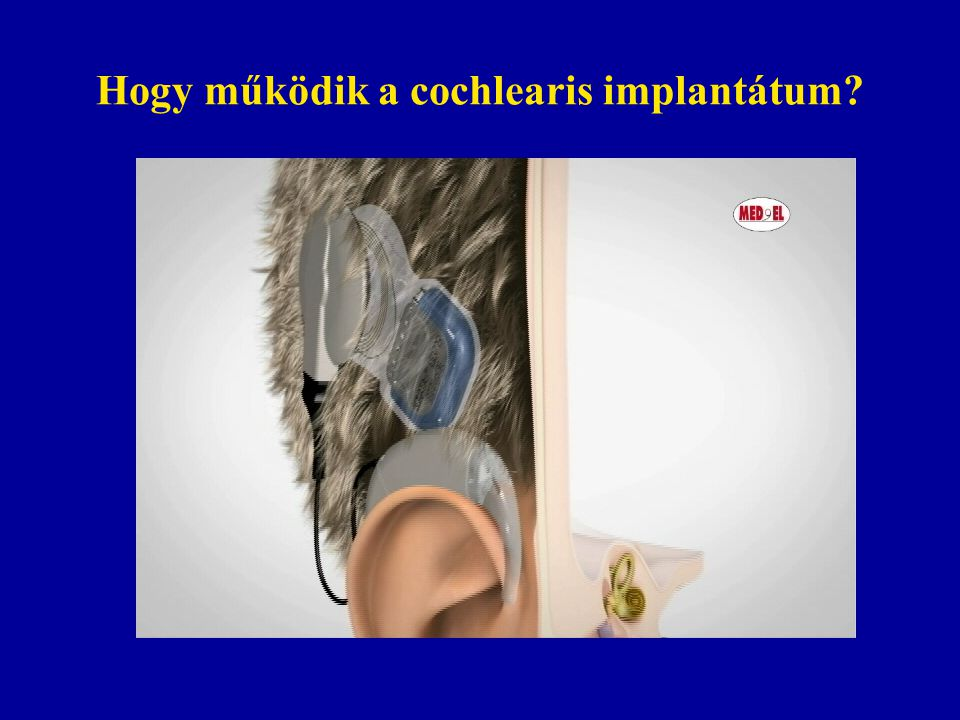 Hogy működik a cochlearis implantátum