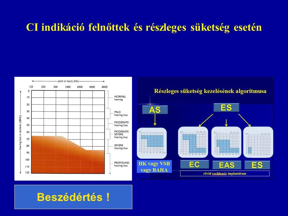 CI indikáció felnőttek és részleges süketség esetén