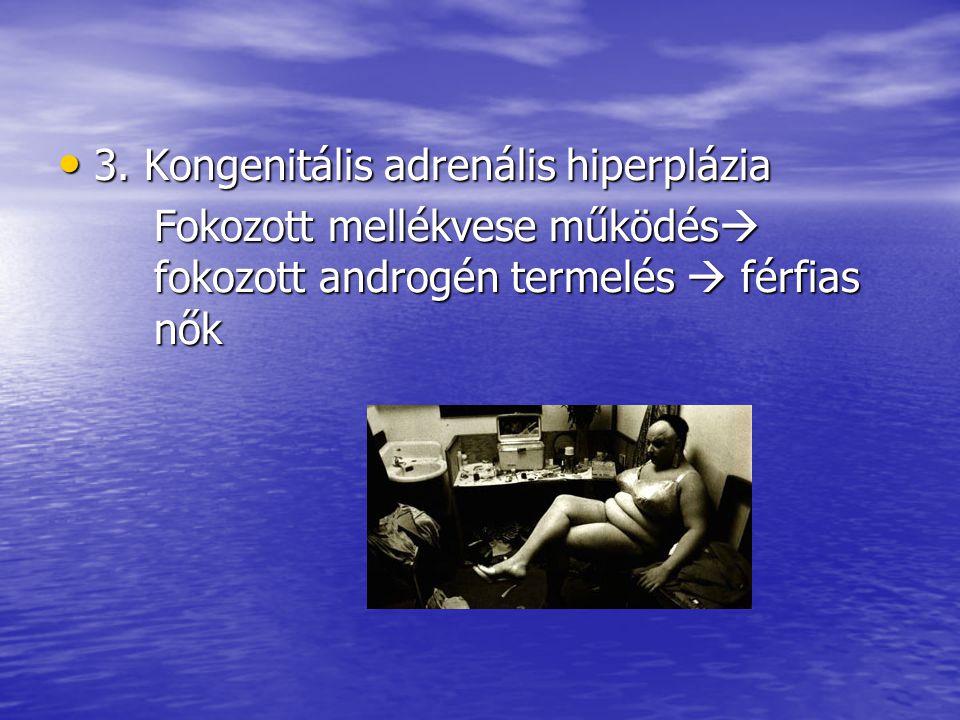 3. Kongenitális adrenális hiperplázia