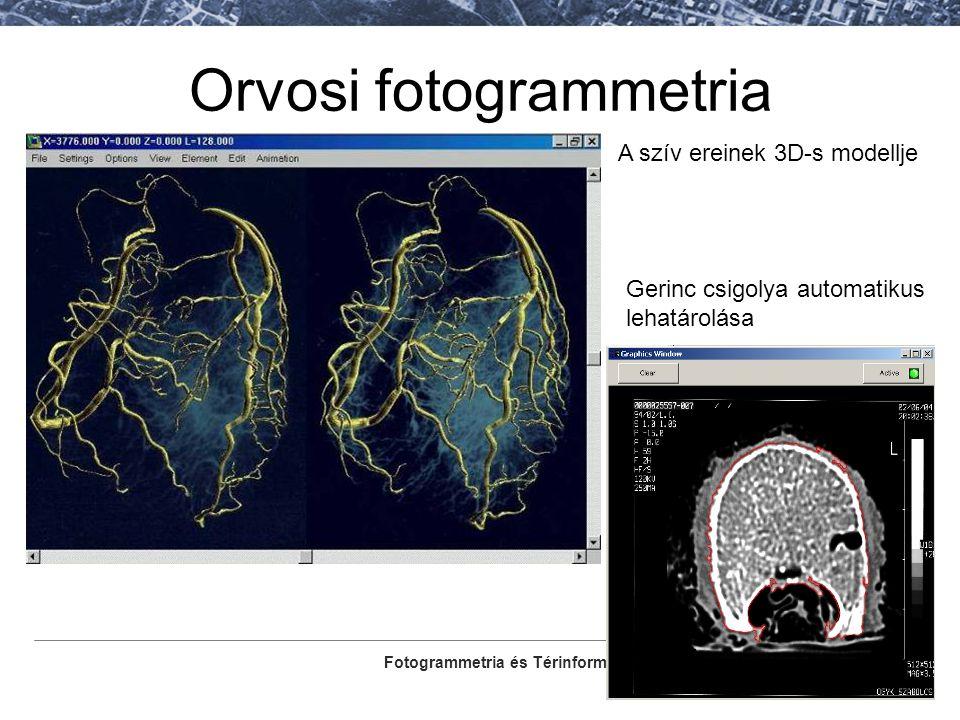 Orvosi fotogrammetria
