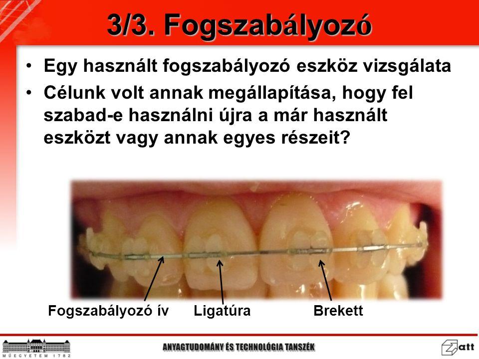 3/3. Fogszabályozó Egy használt fogszabályozó eszköz vizsgálata