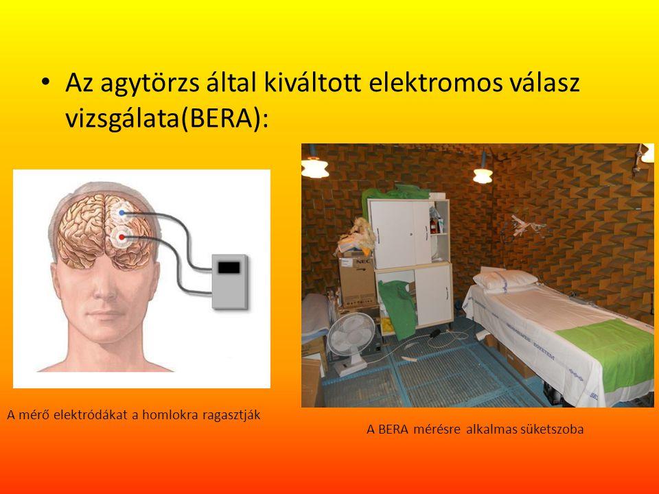 Az agytörzs által kiváltott elektromos válasz vizsgálata(BERA):
