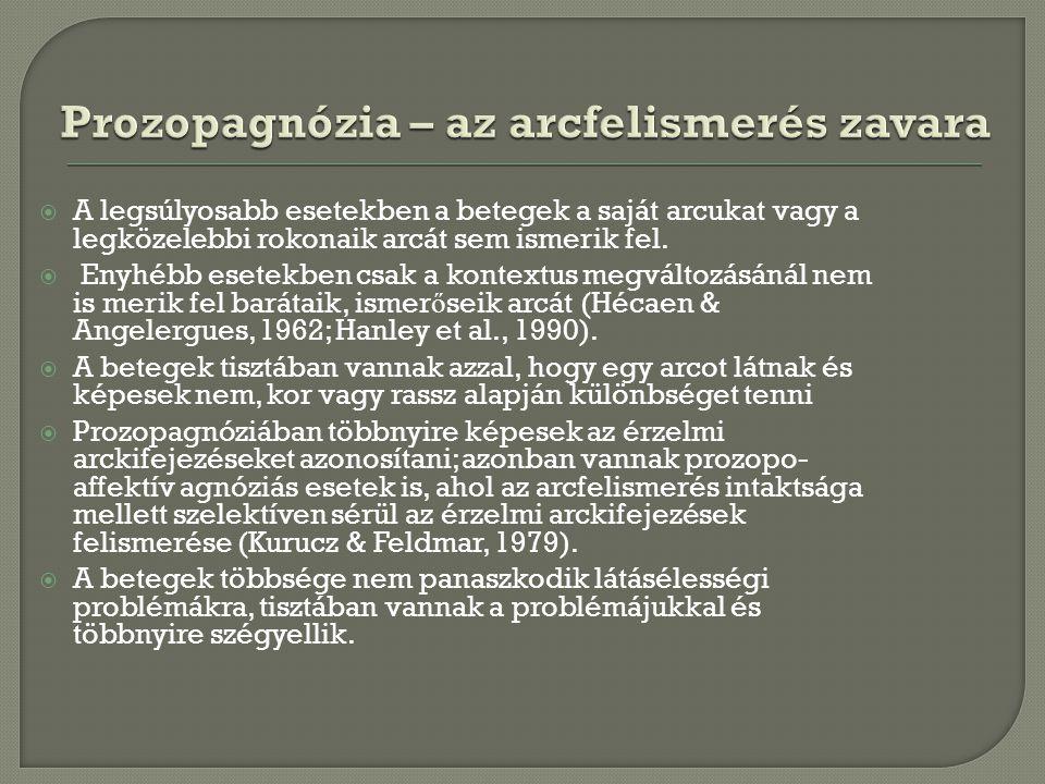 Prozopagnózia – az arcfelismerés zavara