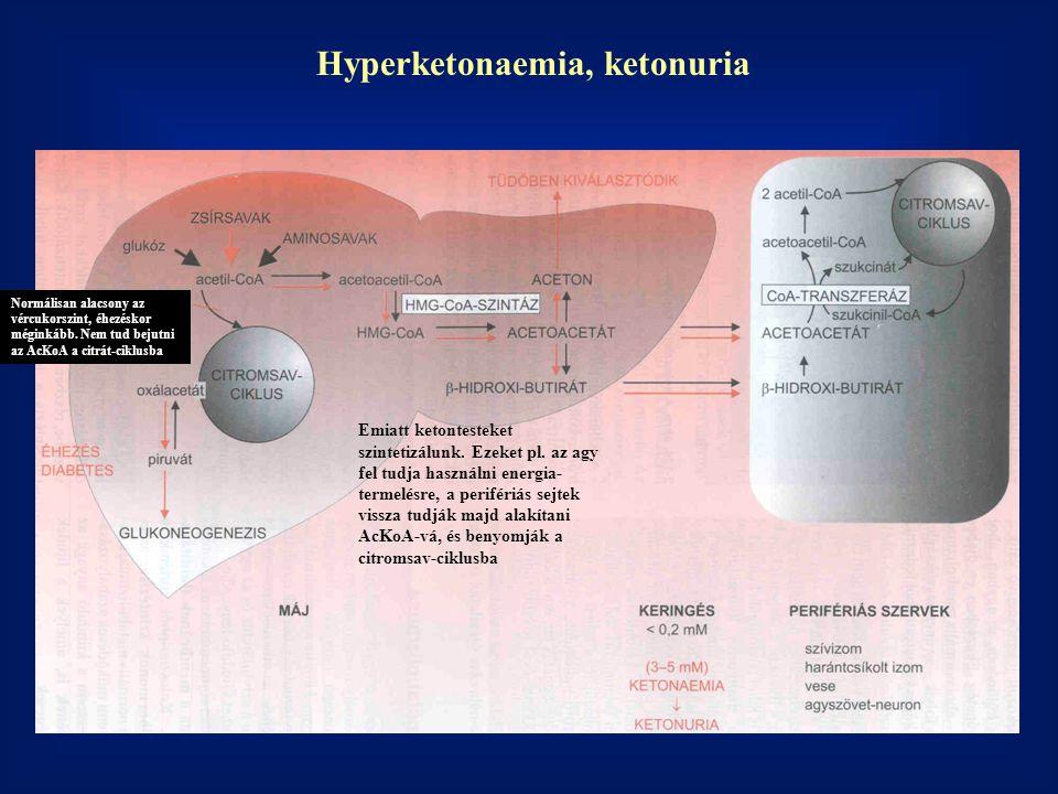 Hyperketonaemia, ketonuria