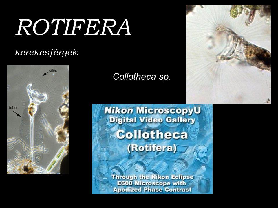 ROTIFERA kerekesférgek Collotheca sp.