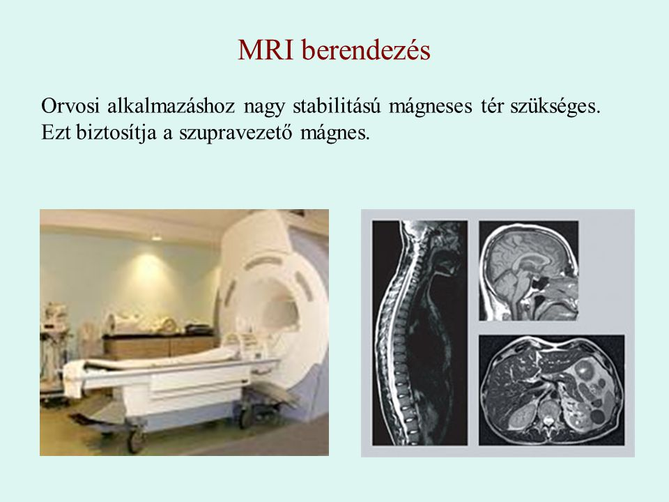 MRI berendezés Orvosi alkalmazáshoz nagy stabilitású mágneses tér szükséges.