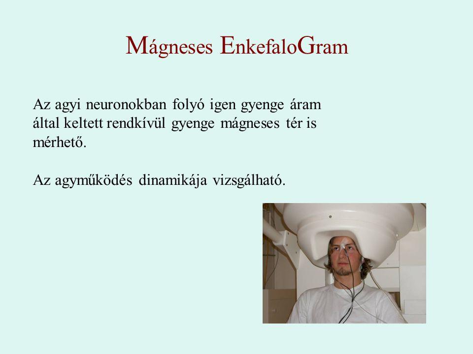 Mágneses EnkefaloGram