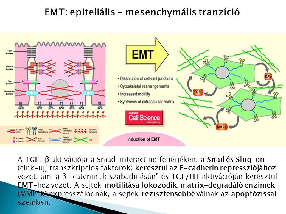 EMT: epiteliális – mesenchymális tranzíció