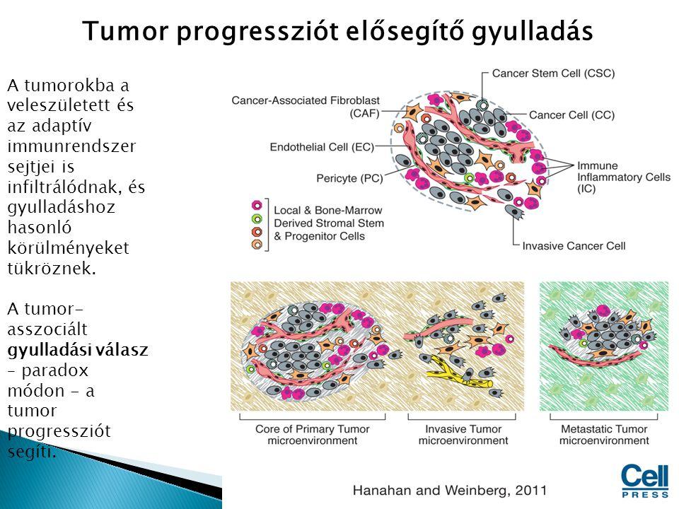 Tumor progressziót elősegítő gyulladás
