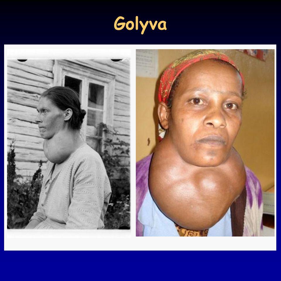 Golyva