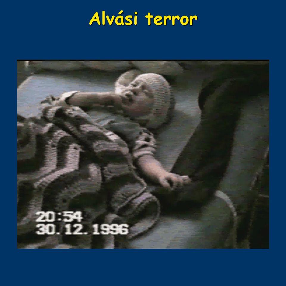 Alvási terror