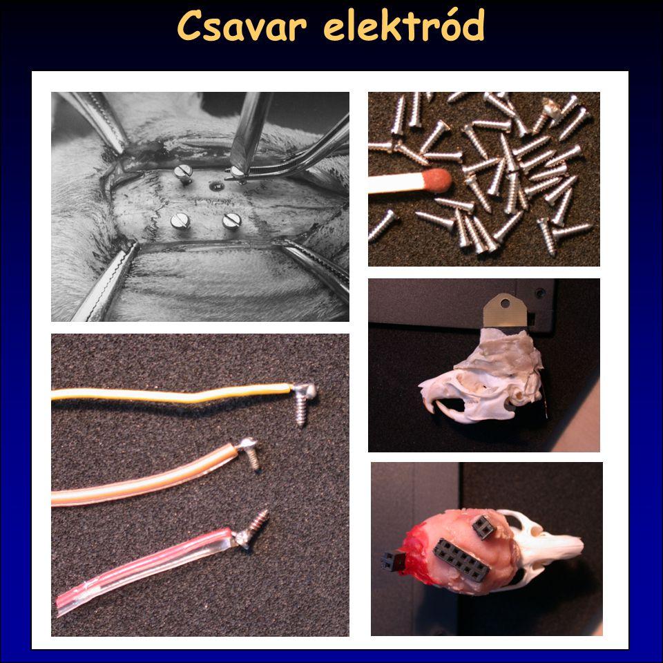Csavar elektród