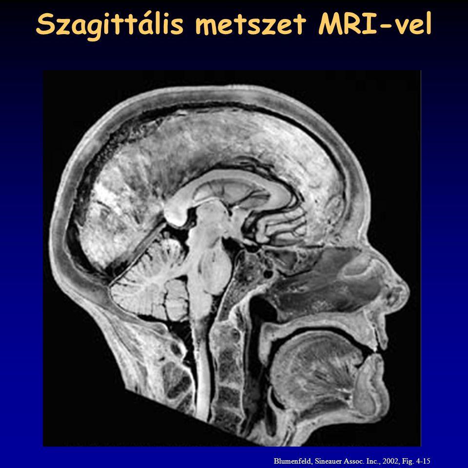 Szagittális metszet MRI-vel