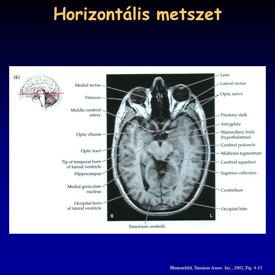 Horizontális metszet Blumenfeld, Sineauer Assoc. Inc., 2002, Fig. 4-13