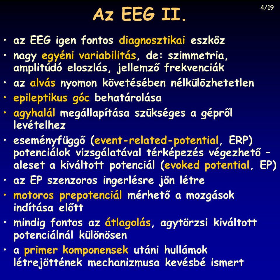 Az EEG II. az EEG igen fontos diagnosztikai eszköz