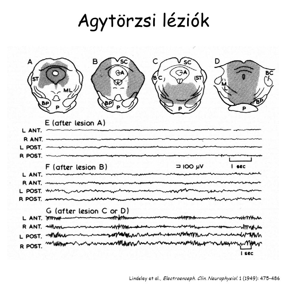 Agytörzsi léziók Lindsley et al., Electroenceph. Clin. Neurophysiol. 1 (1949): 475-486
